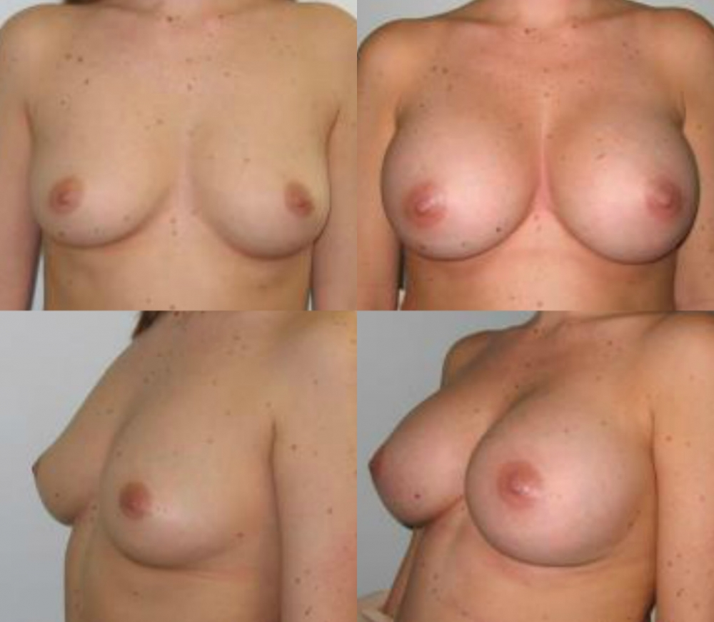 Breast Augmentation Gel Implants, 400 cc by Dr. Chang Soo Kim