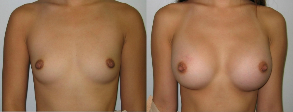 Breast Augmentation Gel Implants, 300cc by Dr. Chang Soo Kim