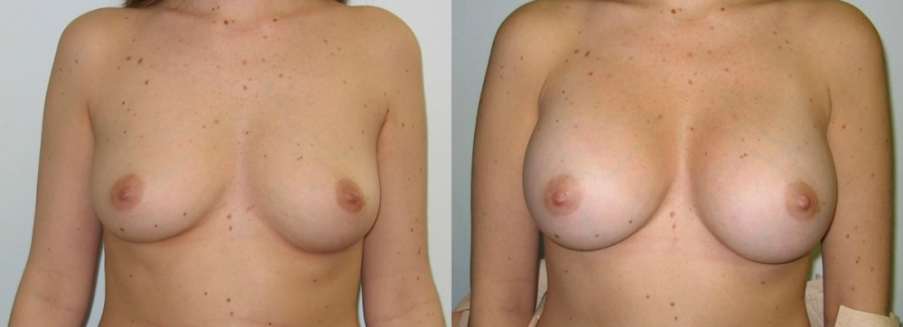 Breast Augmentation Saline Implants 350cc