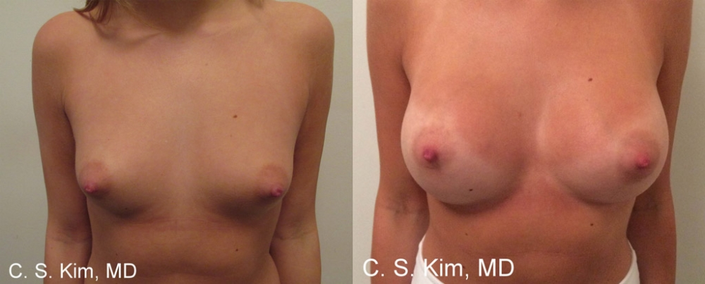 Breast Augmentation Saline Implants, 275cc by Dr. Chang Soo Kim