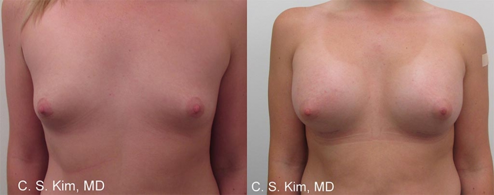 Breast Augmentation Gel Implants, 250cc by Dr. Chang Soo Kim
