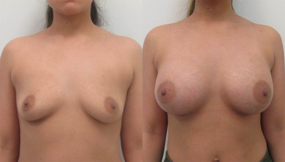 Breast Augmentation Saline Implants, 350cc by Dr. Chang Soo Kim