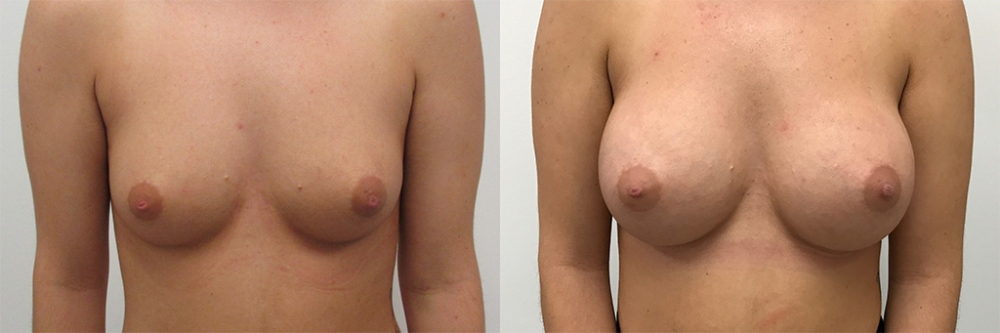 Breast Augmentation Gel Implants, 375cc by Dr. Chang Soo Kim